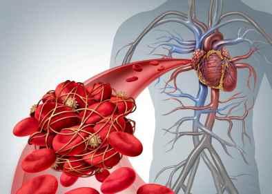 omocisteina-alta-rischio-cardiovascolare
